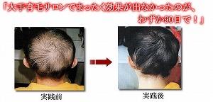 育毛小林03.jpg